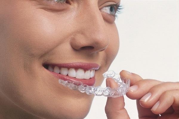 約2週間に1回マウスピースを取り換えるので、口腔内を清潔な状態に保てる